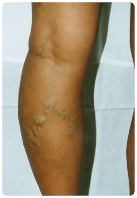 Hogyan lehet eltávolítani a lábvénákat műtét nélkül: a visszér alternatív kezelése