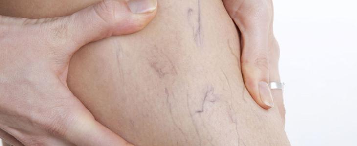 csavarja a karikát visszérrel visszér és hatékony kezelések