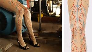 visszér a lábakon, ahogy kinéz hogyan lehet bekötözni a térd visszérrel