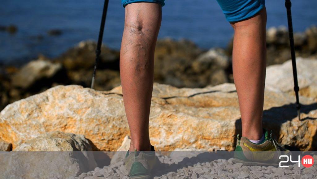 visszér rajzolása a lábakon visszérműtét utáni szövődmények