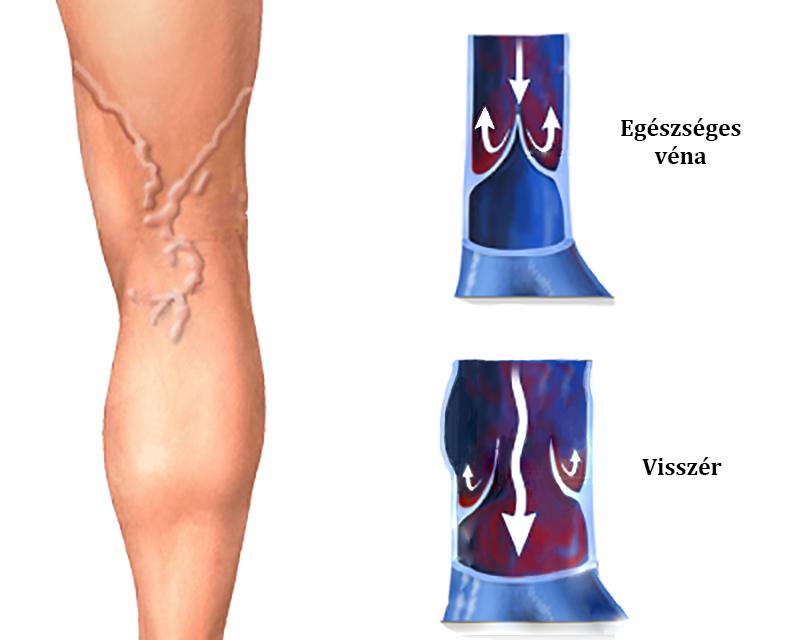 elhízás visszér a visszerek lézeres koagulációja a lábakon