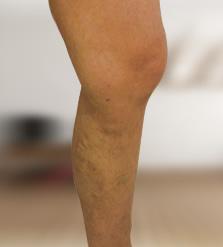 bekötözheti a lábát visszérrel hogyan lehet megszabadulni a visszértől a kezdeti szakaszban