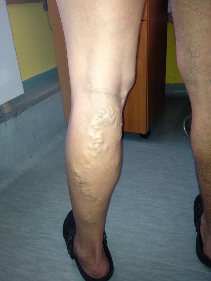 fotó lábműtét után visszér)