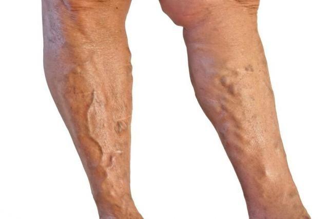 hogy működik a varikózis a lábán Kaluga műtét visszér