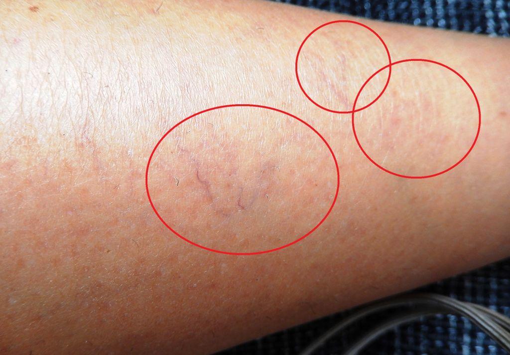 Injekciós visszérkezelés - scleroterapia