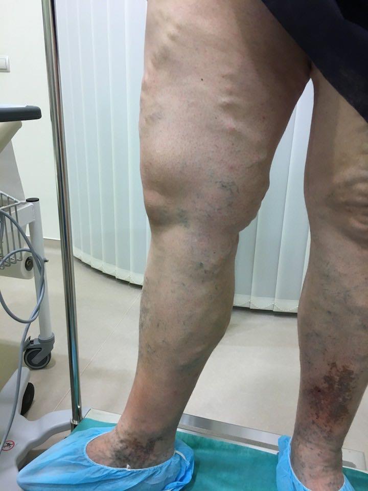 fotó lábműtét után visszér