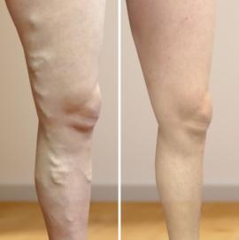 műtét a varikózis fején a lábak visszérmelegítése