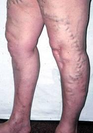 álló munka megakadályozza a visszér kialakulását sebek jelentek meg a lábakon visszérrel