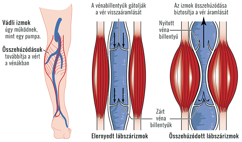 a lábak visszérfeleslege túlsúlyos a gastrocnemius izom visszér
