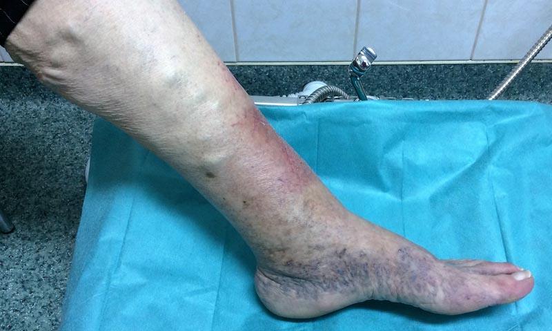 visszeres kötés az alsó lábszáron