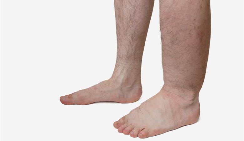 az alsó láb zsibbadása visszeres