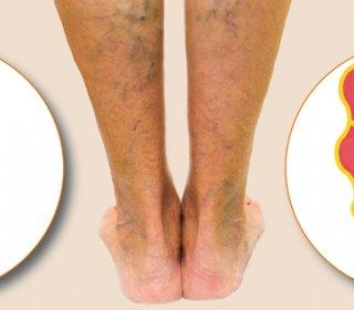 só a láb ödémájától és a varikózisától