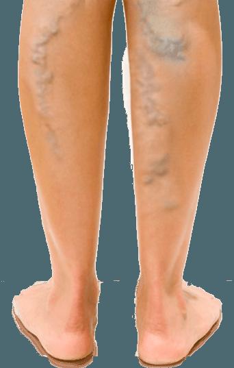 A medence hasnyálmirigye - tünetek és kezelés nőknél, A kismedencei varikózis következményei