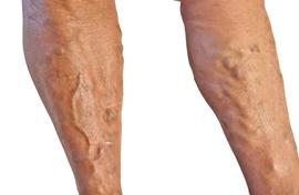 Hogyan lehet kezelni a visszerek a lábakon a férfiaknál - Az okok
