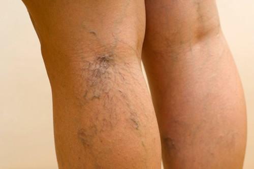 visszér a műtét után fáj barna bőr visszeres