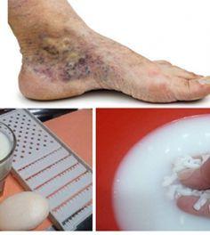 visszér kezelése a lábakon hagyományos orvoslás