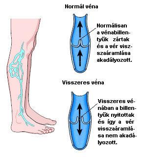 visszér szkleroterápia költség visszér a lábakban és a testmozgás