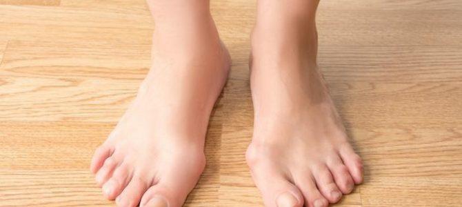 Csontkinövés a lábfej belső részén | Harmónia Centrum Blog