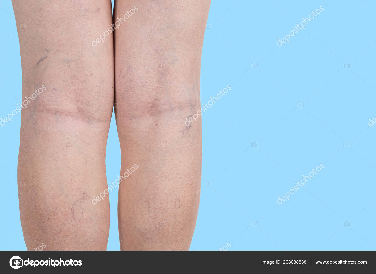 Coverderm Perfect Legs