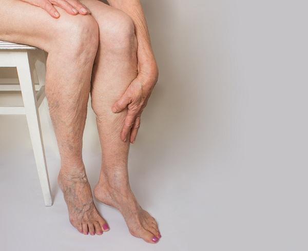 véraláfutó lábak visszér