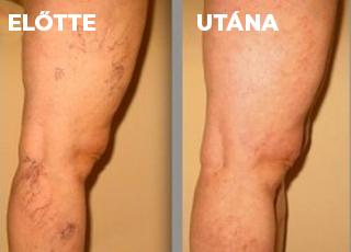 lehetséges-e a lábakat visszérrel eltávolítani ecet a lábak visszérgyulladásához