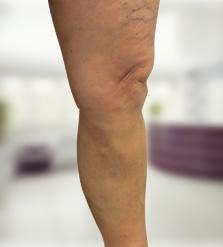 hogyan lehet lézerrel gyógyítani a visszéreket a lábakon