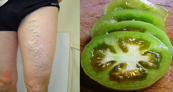 visszér a lábakon.műtét után öregségi foltok visszér