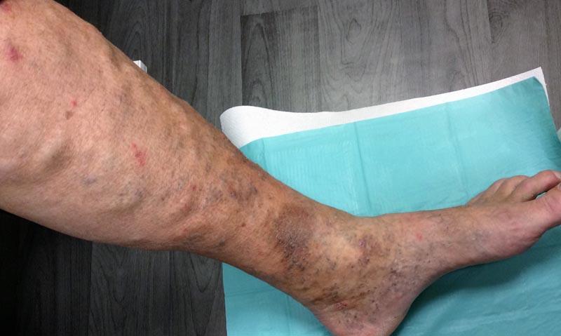 visszér fekete lábak
