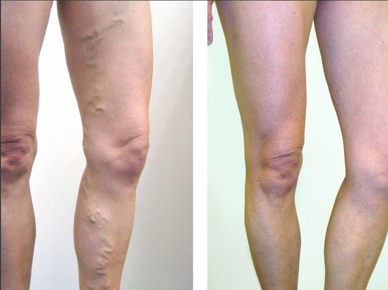 retikuláris varikózis a lábakon fotó nap a visszér elleni küzdelemhez, amikor