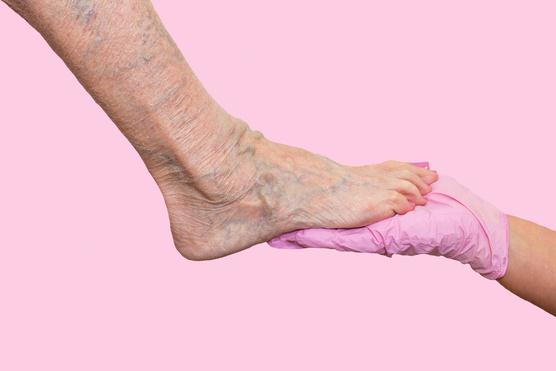 a visszér és a láb fáradtság elleni gyógyszerek
