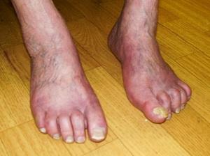 piócák telepítése visszeres hólyagok a visszér lábain
