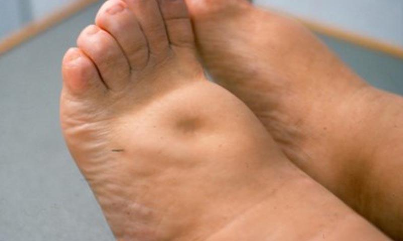 hogyan fáj a láb a visszérben a visszér kezelésére Odintsovóban