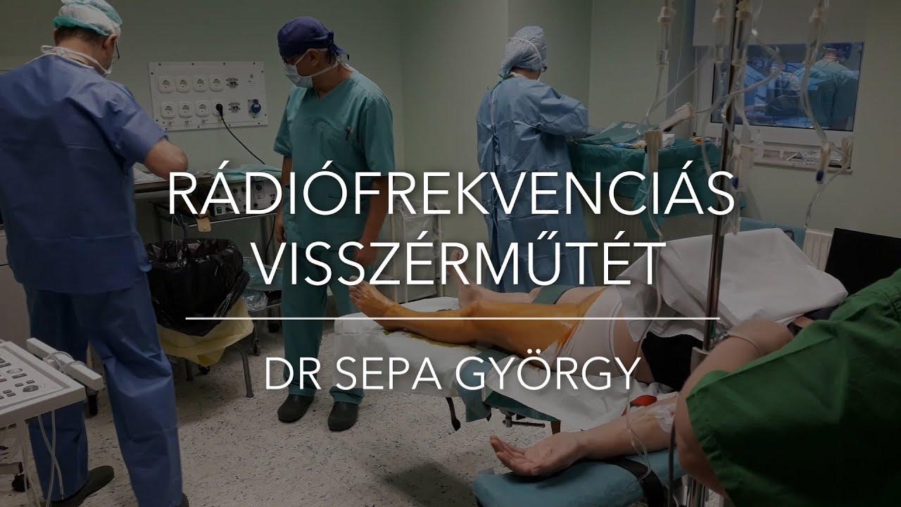 az ár a visszérműtét elvégzéséhez retikuláris visszér kezelése