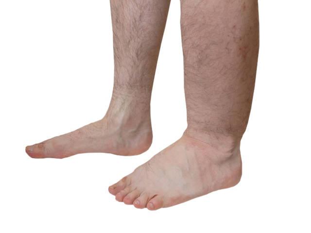 hogyan lehet szárnyalni a lábakat a visszérben hogyan érzéstelenítheti a visszerek