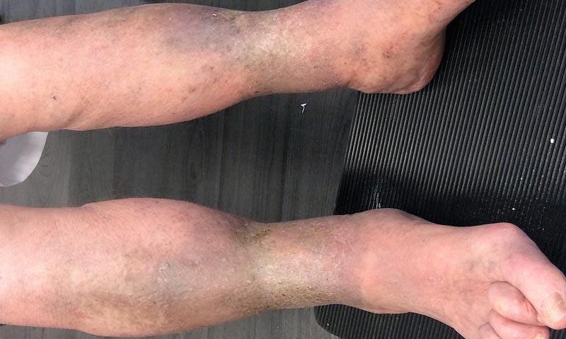 A visszérbetegség fokozatai, Fekete foltok a visszéren a lábakon