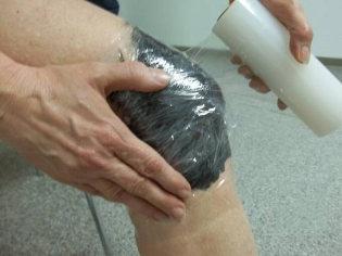A visszér apiterápiás kezelése