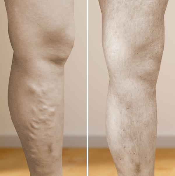 legjobb kompressziós harisnya visszér műtét után a varikózis miatt fáj a láb