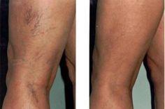 enyhíti a varikózisos lábak állapotát oglov visszér oka