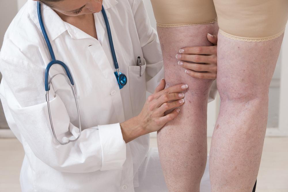 a láb visszerek miatt fáj, mint kezelni