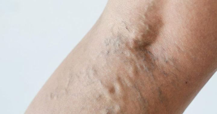 a hirudoterápia hatékonysága a visszér kezelésében
