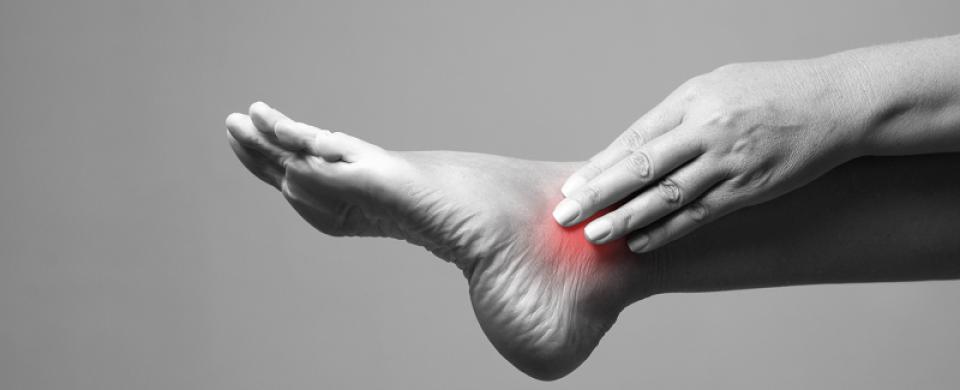 a lábak varikózisának kezelése arany bajusszal