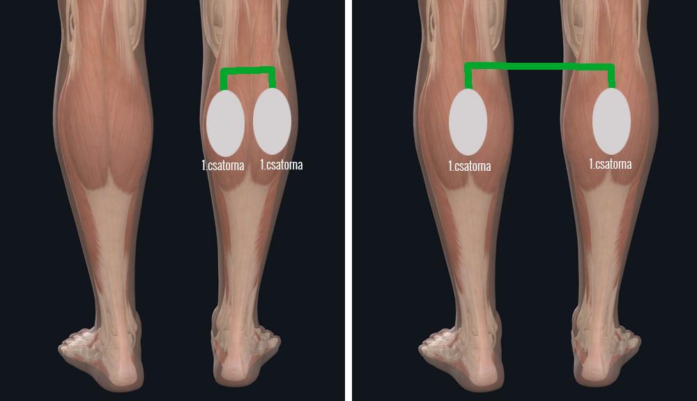 visszerek a mellkason férfiaknál fotó a lábakról a visszerek kezdeti szakaszában