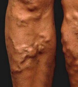 súlyok a lábakon a visszér ellen