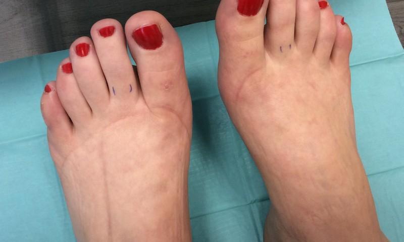 Trombózist kaphat, ha ilyen a lába - EgészségKalauz