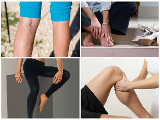 milyen gyógyszerek kezelik a visszerek a lábakon perforáló visszér