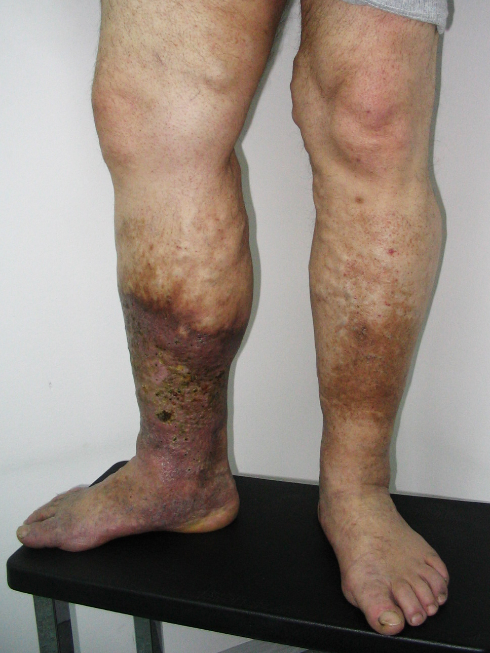 almaecet visszér kezelésére visszér fotó a láb tünetei