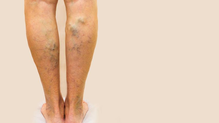 Lézeres visszérműtét (egyoldali) - Haematoma a lábon a visszerek eltávolítása után