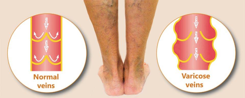 rázza meg a lábát visszérrel párnák a visszér kezelésében