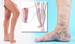 Kötés rugalmas pólyával a visszér ellen, Visszeres láb: amikor nem elég a kompressziós harisnya