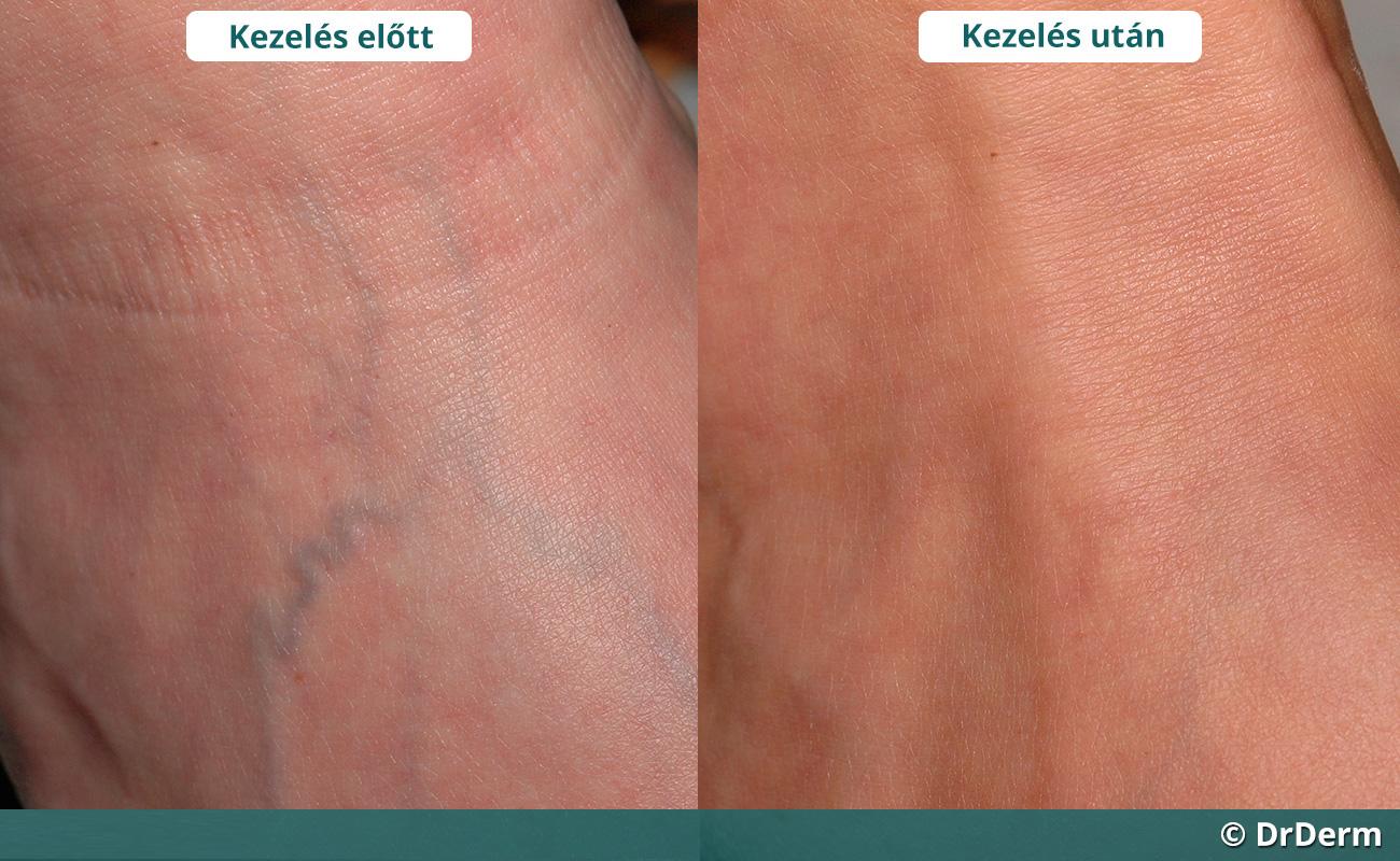 Aloe alkohol visszér ellen - A lábak visszérgyulladása kenőcsökkel